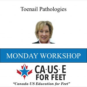 toenail_pathologies_cause_for_feet